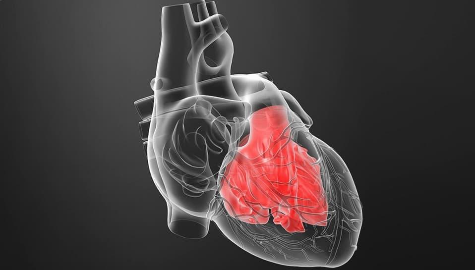 โรคหัวใจโต