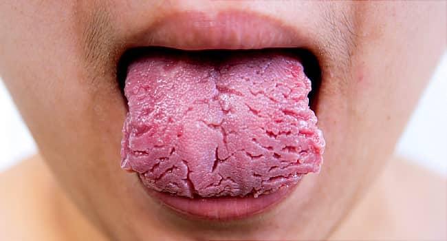 ลิ้นเป็นฝ้า (White Tongue) : อาการ สาเหตุ การรักษา